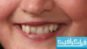 آموزش ویدئویی فتوشاپ ترمیم دندان