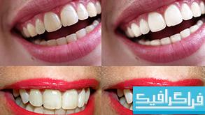 دانلود اکشن فتوشاپ سفید کردن دندان