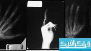 دانلود تصاویر استوک عکسبرداری با اشعه ایکس